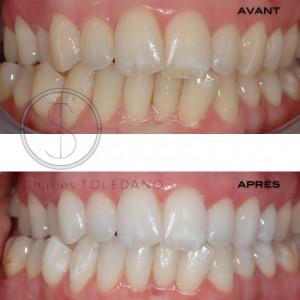 blanchiment des dents strasbourg prix
