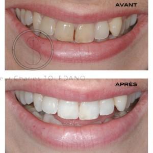 Blanchiment dents dévitalisées + global