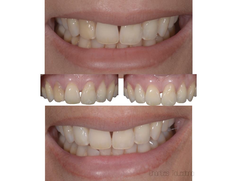 Blanchiment dent dévitalisée en 21 jours